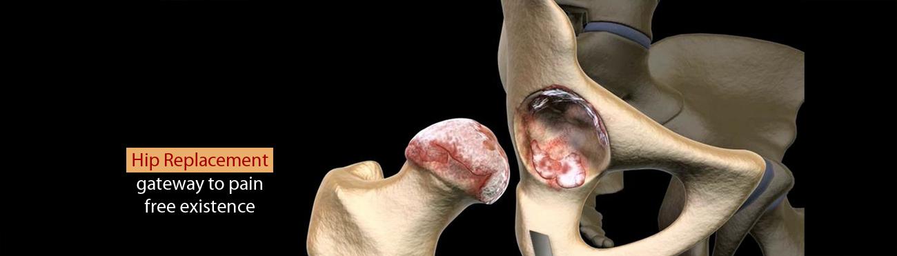 Orthopedic Specialists In Arthritis Management Colorado