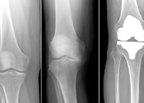 Best Knee Replacement Surgery in Kolkata